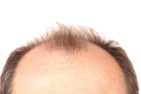 Baldness Causes Signs And Ways To Improve large - MCSARA Hair