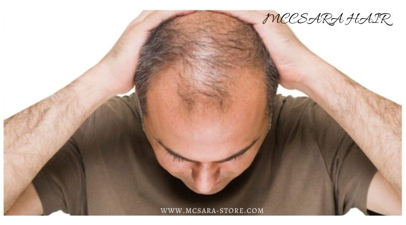 How To Green Bare Hills For Men Over 30 - MCSARA Hair