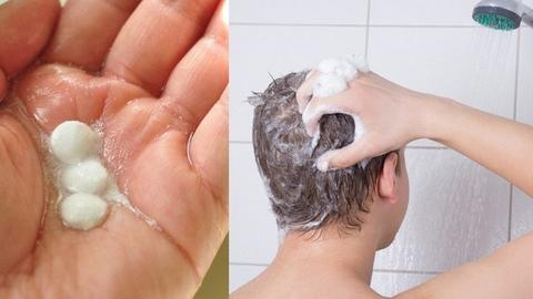 How to get rid of dandruff at home large 1 - MCSARA Hair
